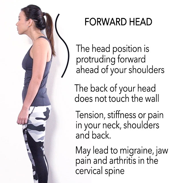 How To Improve Bad Posture Amp Look Tall Exercises Amp Causes