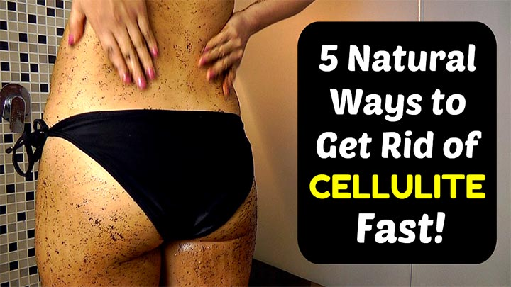 5 natural ways to get rid of cellulite